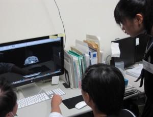 CT画像を解析する様子