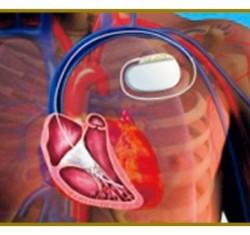 植え込み型除細動器(ICD)治療