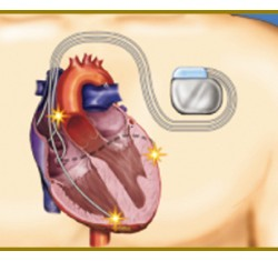 心臓再同期療法(CRT)